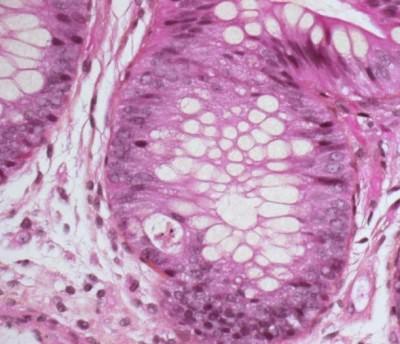 аденовирус симптомы