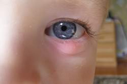 Воспаление век - симптом аллергического ринита
