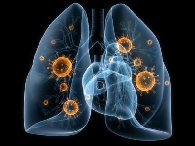Признаки воспаления легких, вызванного бактериями у взрослого