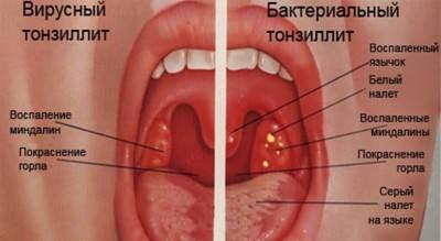 Как выглядят симптомы бактериального и вирусного тонзиллита