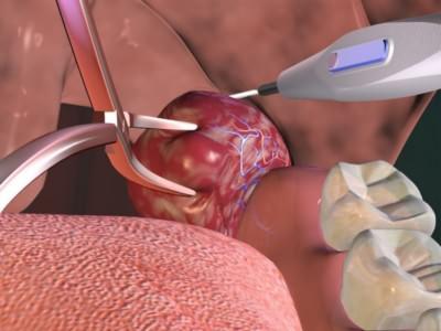 В некоторых случаях при тонзиллите требуется хирургическое вмешательство
