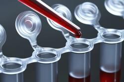 Общий анализ крови для диагностики заболевания