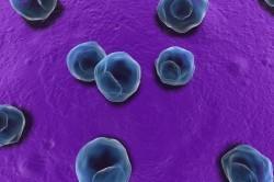 Хламидии - причина атипичной пневмонии