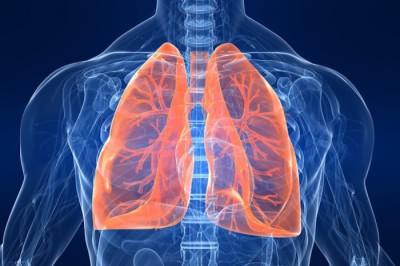 Рак легких - причина затяжного кашля