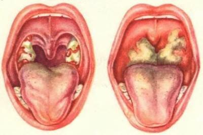 белый налет в горле в схеме