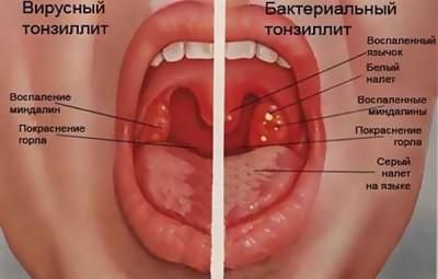 бактериальная ангина