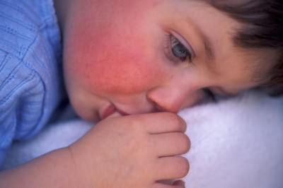 высокая температура у ребенка и красное горло