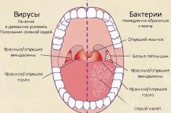 Фарингит - причина боли в горле