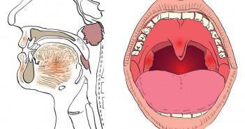 горло болит длительное время