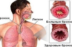Симптомы заболевания астматическим бронхитом