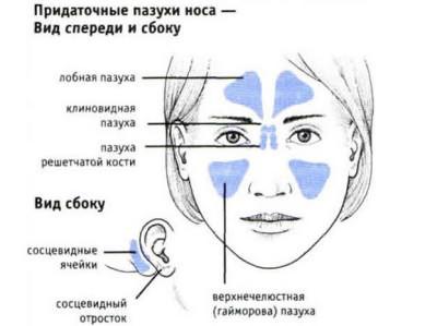 Симптомы гайморита у взрослого. Где располагаются пазухи