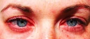 Конъюктивит при аллергии