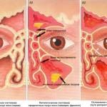 Основные симптомы при гайморите