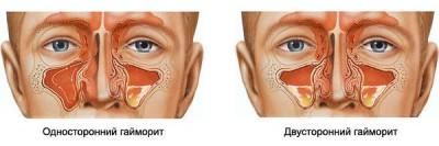 Проявление различных форм заболевания гайморита