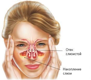 Лечение, причины и симптомы катарального гайморита