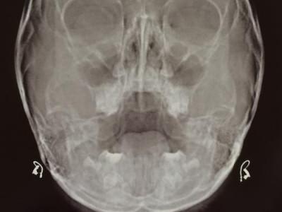 Рентген-снимок придаточных пазух в норме