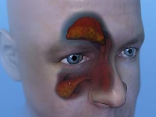 Рентген гайморовых пазух