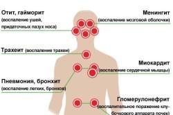 Возможные осложнения после гриппа