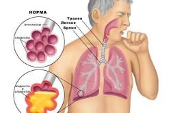 Легкие в норме и при пневмонии