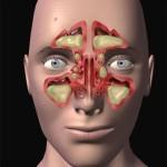 острый гайморит лечение