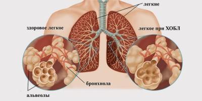 Симптомы хронической обструктивной болезни легких
