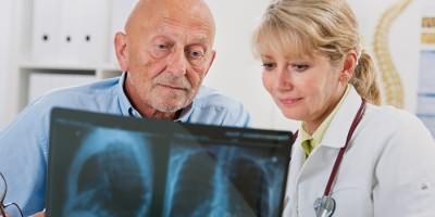 Врач и пациент смотрят рентген легких
