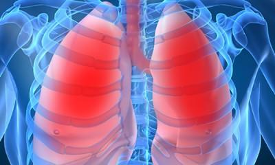 Локализация пнвмонии в организме
