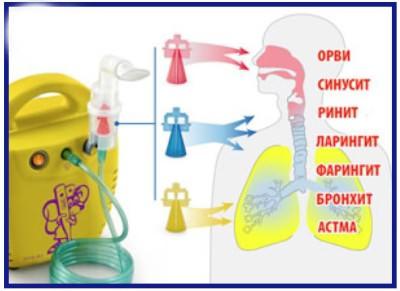 Лечение кашля небулайзером