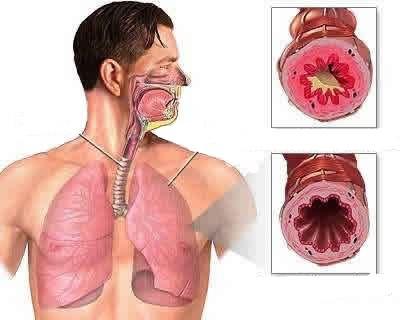 Лечение влажного кашля содой