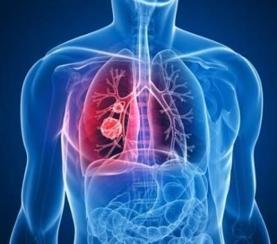 воспаление легких симптомы без температуры как лечить