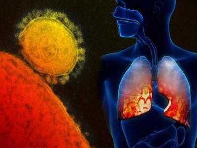 сколько лечат воспаление легких