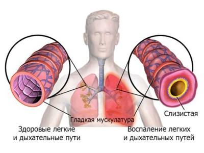 Как проявляется воспаление легких и дыхательных путей
