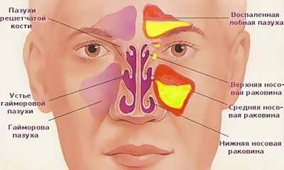 Воспаление пазух при гайморите