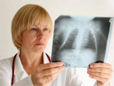 Симптомы воспаления легких без температуры