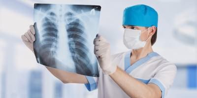 Врач изучает рентген грудной клетки