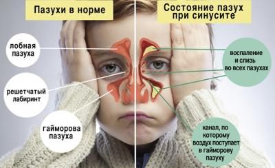 Сравнение больных и здоровых носовых пазух