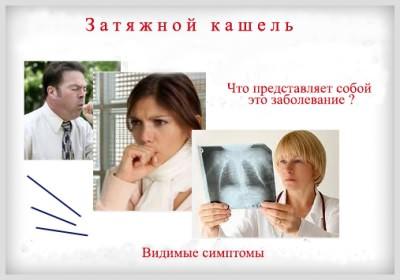Симптомы затяжного кашля