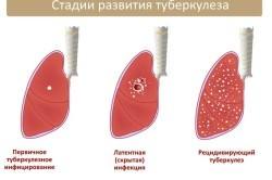 Проявления туберкулеза