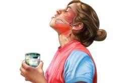 Полоскание горла при возникновении першения и кашля