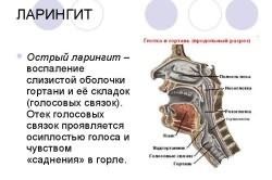 Симптомы и формы проявления ларингита