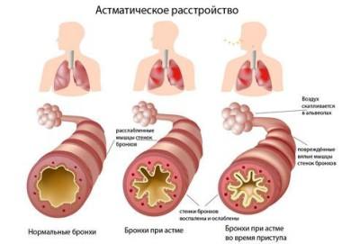 Кашель у взрослых при аллергии