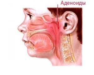 Аденеоиды