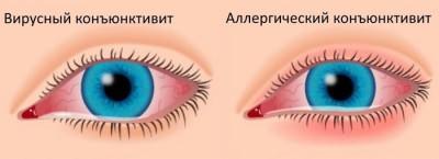 Вирусный и аллергический конъюнктивит