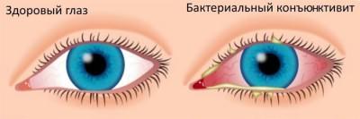 Здоровый глаз и больной бактериальным конъюнктивитом