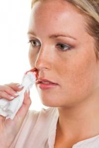 Кровяной насморк