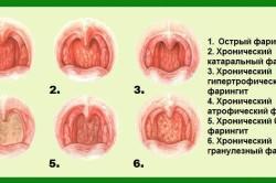 Фарингит как причина сухого кашля