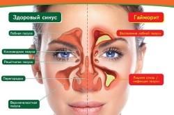 Симптоматика гайморита