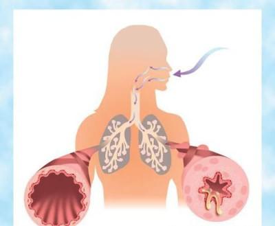 орз симптомы и лечение