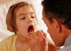 лечение тонзиллита у детей