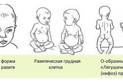 Рахит у детей - фактор риска развития трахеита